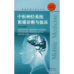 中枢神经系统影像诊断与临床