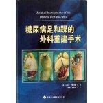 糖尿病足和踝的外科重建手术