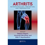 预订 Arthritis: Pathophysiology, Prevention, and Therapeutics