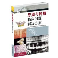 牙周与种植临床问题解决方案