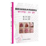 面部注射填充术并发症防治(翻译版)